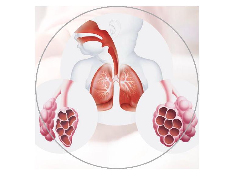 Presión positiva dinámica de las vías respiratorias para alto flujo nasal (NHF)