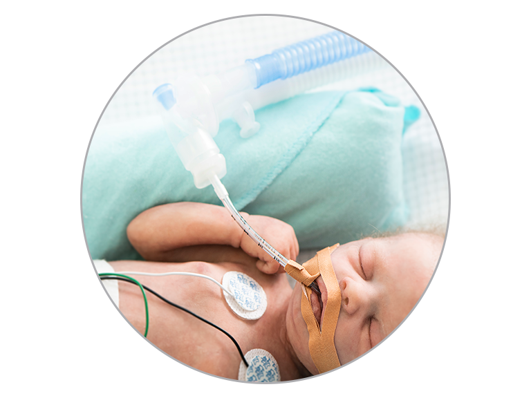 Infant Invasive Ventilation