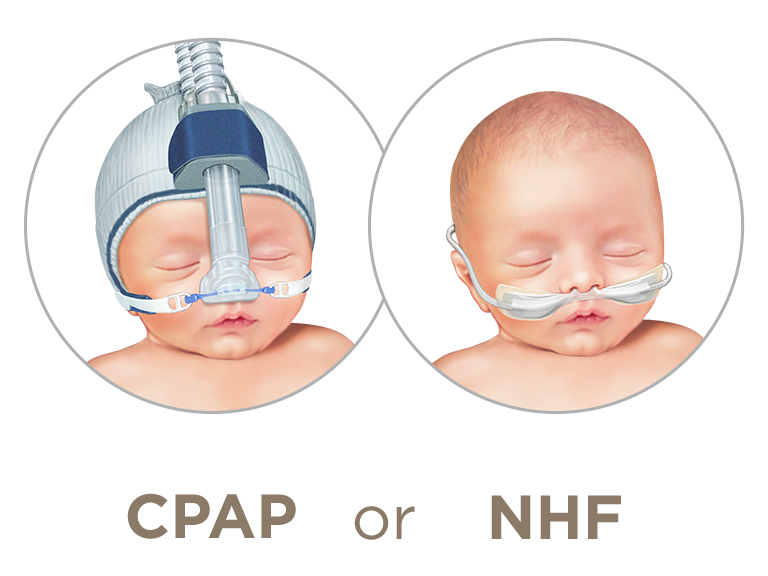 NHF as an alternative to prolonged CPAP