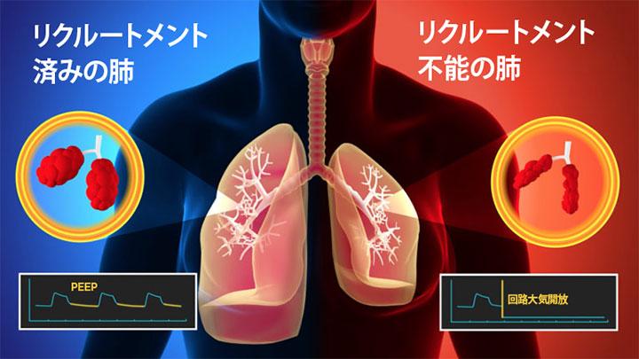 肺リクルートメントの低下