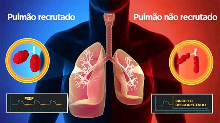 Redução de recrutamento alveolar