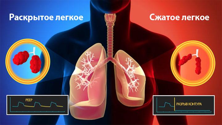 Уменьшение раскрытия объема легких