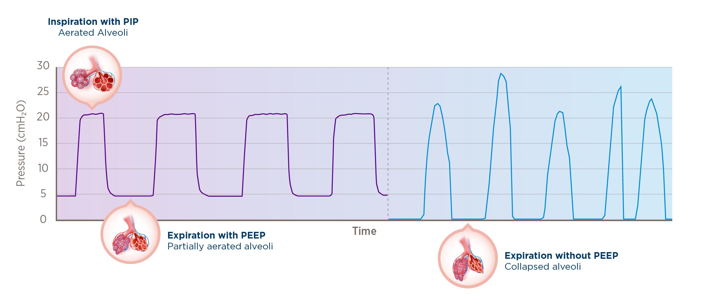 resuscitation waveform graph