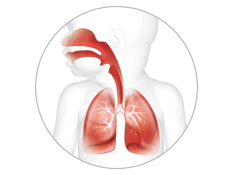 Invasive ventilation assist in defense mechanism