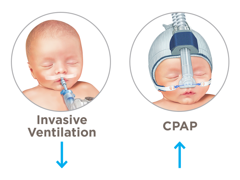 CPAP Reduces the need for mechanical ventilation