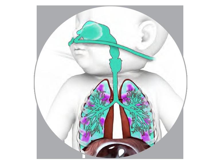 El alto flujo nasal (NHF) reduce el espacio muerto anatómico.