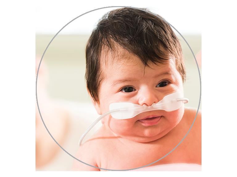 Haut débit nasal pour les nourrissons