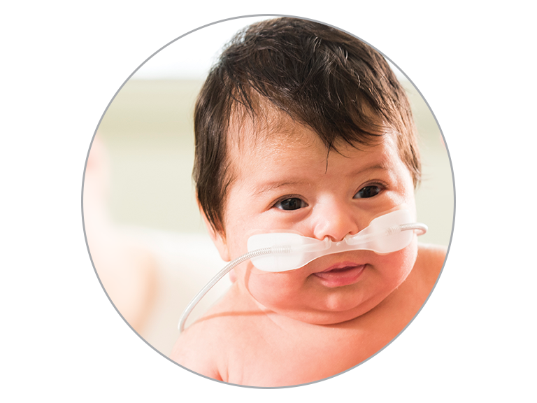 Alto flujo nasal para lactantes