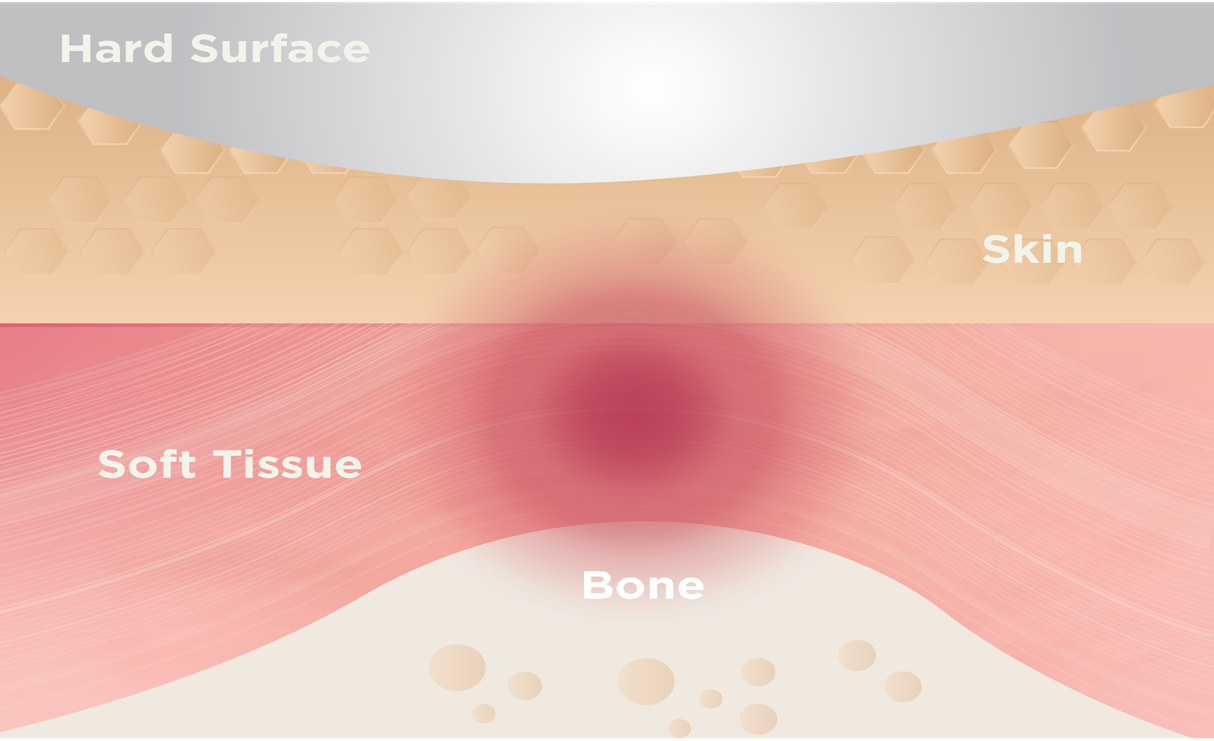 Pressure factor affects formation of pressure ulcers