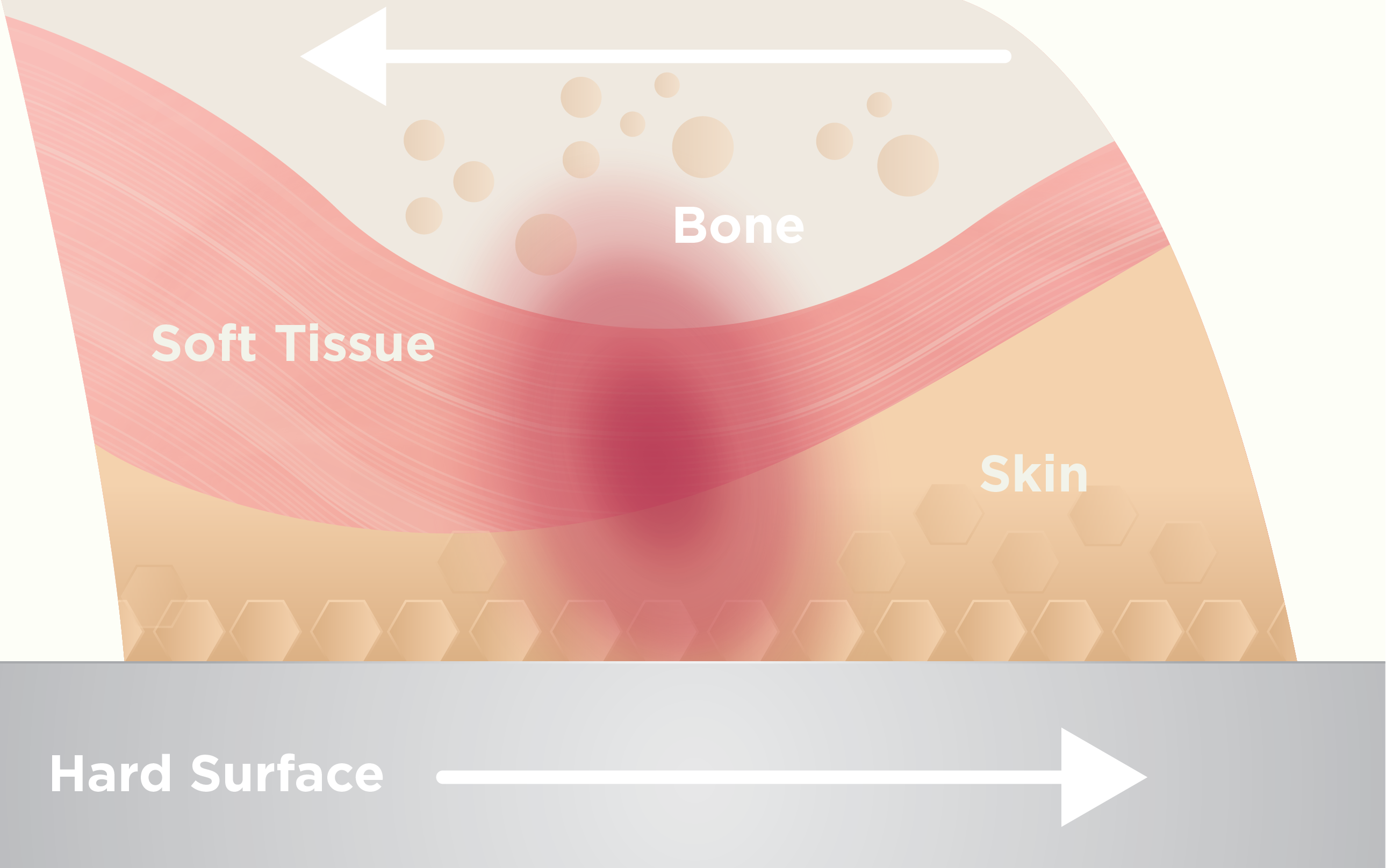Friction can affect the formation of pressure ulcers