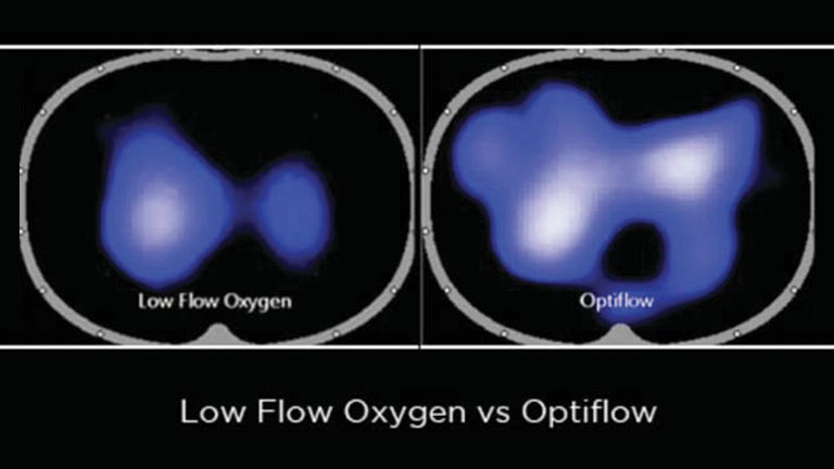 Comparison of Low Flow Oxygen Therapy and Optiflow